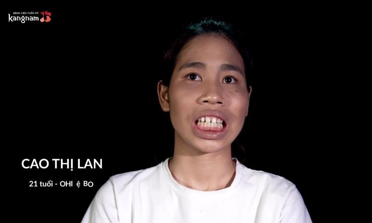 Cô gái sống tại làng trẻ SOS thẩm mỹ vì mong muốn cuộc sống tốt hơn