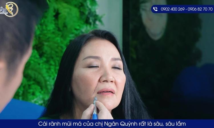 Diễn viên Ngân Quỳnh livestream làm đẹp với chỉ vàng